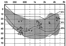 Audiogram: a graph used by audiologists to determine hearing levels. This one has the sounds of speech (English) superimposed on the graph to help parents and teachers understand the impact of hearing loss. Most audiograms depict intensity levels to 120